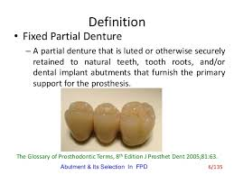 Abutment Definition Abutment Its Selection In Fixed Partial Denture