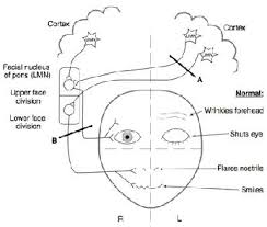 general somatic effe gse supply to the face is by nerve main motor nucleus that carries gse fibers to the muscles is located at lower