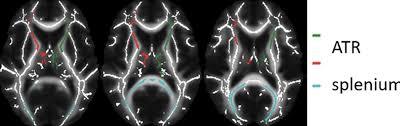 Adhd Medication Chart 2016 Adhd Medication May Affect Brain Development In Children