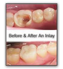 dental onlay dentist inlays and onlays in port st lucie florida southport dental