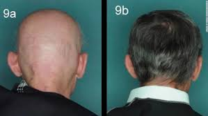 experimental s re hair loss