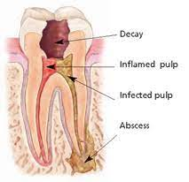 Root canal treatments and when root canal therapy is performed on dogs or cats, the tooth usually does not need a crown. Root Canal And Root Canal Retreatment Endodontist