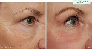 before after co2 can target smaller areas like under the eyes this patient is two weeks post procedure and still a little red
