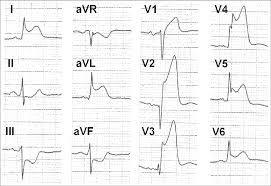 Ecg Shows Anterior St Elevation Myocardial Infarction Of The Left