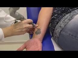 Odstranění Tetování Pigmentové Skvrny Laserem Mudr Marta Moidlová