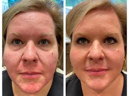 what to expect with under eye filler