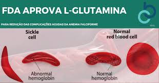 Resultado de imagem para anemia falciforme