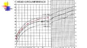 Microcephaly Growth Chart Head Circumference