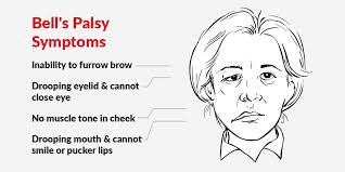can bell's palsy cause a stroke
