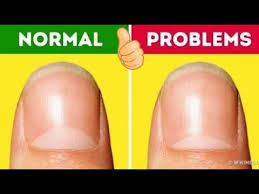 Your Nails Say About Your Health Symptoms Nail Diseases