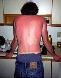Image result for burning sun memes