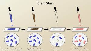 Bacteria Classification Classification Of Bacteria Antibiotics Lecture 1