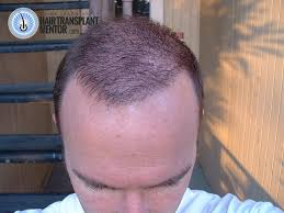 i was feeling pretty good at this point new growth was really kicking in the hair transplant repair cost