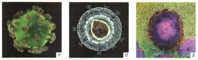 Вирусы Микробиология Реферат доклад сообщение кратко  Вирус иммунодефицита человека ВИЧ а модель вируса б схема строения в электронная фотография