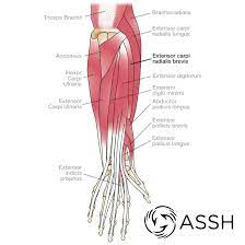 Forearm tendonitis is inflammation of the tendons of the forearm. Body Anatomy Upper Extremity Tendons The Hand Society