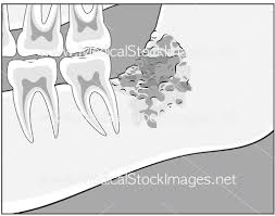 Osteomyelitis of the mandible medical stock images pany pleasing