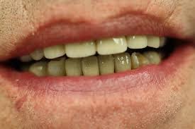 Crown Dentistry Wikipedia