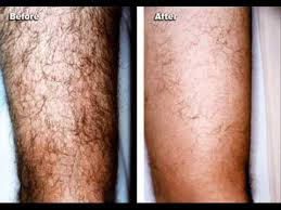 hair removal cream for men best mens hair removal where to revitol hair removal cream