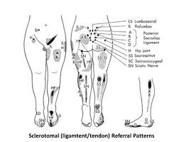 Pain Referral Patterns Beauteous Hip Pain Treatment Relief Utah In48it Medical