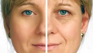 Facial Rejuvenation Cosmetic Acupuncture Points Chart Facial Rejuvenation