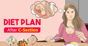 Diet Plan After C Section What To Eat What To Avoid