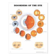 Laminated Chart Disorders Of The Eye Charts Diagrams
