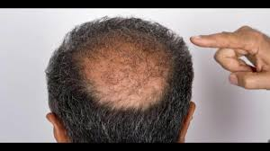 Cure For Male Pattern Baldness