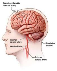 arteries of the face 157_stroke care for ot module 04