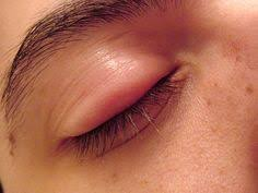 The 43 best Swollen Eye images on Pinterest in 2018 | Eyes, Faces ...