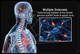 Risultati immagini per sclerosi multipla