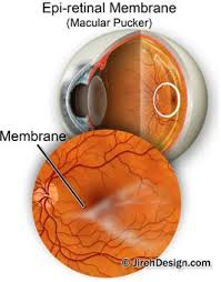 macular pucker epiretinal membrane can be treated with retinal pucker surgery