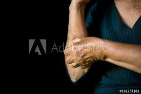 Old hands itching on arm in black background, dermatitis concept ...