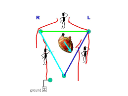 Ecg Chart Labeled Ecg Primer The Mean Electrical Axis