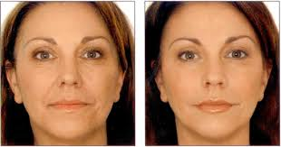 non surgical treatments in s