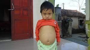 Sự sống mong manh của bé trai 3 tuổi không có túi mật, bụng muốn nổ tung vì  căn bệnh quái ác