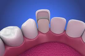 dental veneers 101
