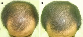 nutritional correction for hair loss