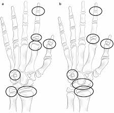 Bone Age Wrist Chart Assessment Of Skeletal Maturity Musculoskeletal Key