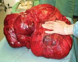 C ncer de colon - comprehensive