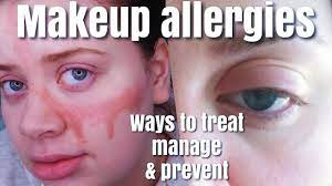 heal allergic reactions to makeup on