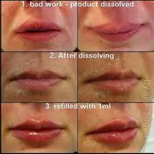 Lip Filler Chart 25 Best Lip Fillers Images Lip Fillers Lips Lip Injections