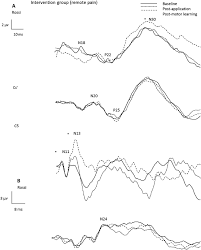 Figure 3 raw data from a representational intervention participant indicating cortical peaks a