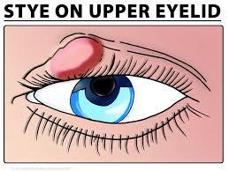 eye stye picture