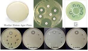Petri Dish Bacteria Identification Chart Mueller Hinton Agar Mha Composition Principle Uses And