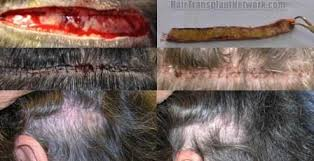 hair transplant how it works fue hair transplant hair follicle hair transplantation