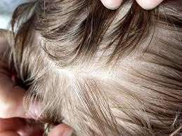 what does head lice look like and how