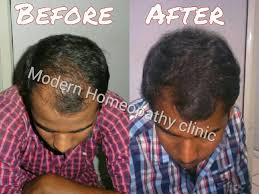 Homeopathy Medicine For Hair Loss Treatment