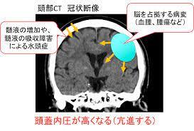 頭蓋 内圧 亢進