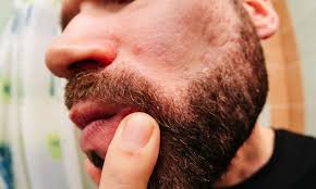 ingrown hairs in your beard here s how
