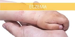 Allergy Skin Causes — brad.erva-doce.info